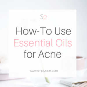 how to use essential oils for acne cover